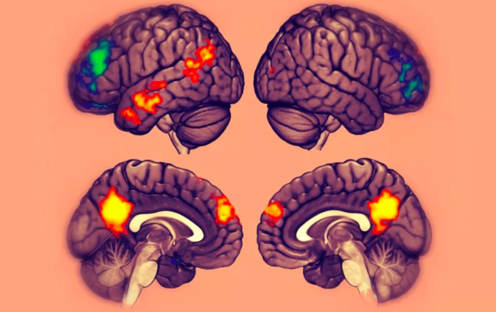 Brain cross section scan